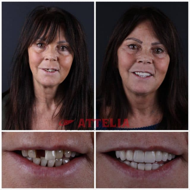patient tooth done in turkey